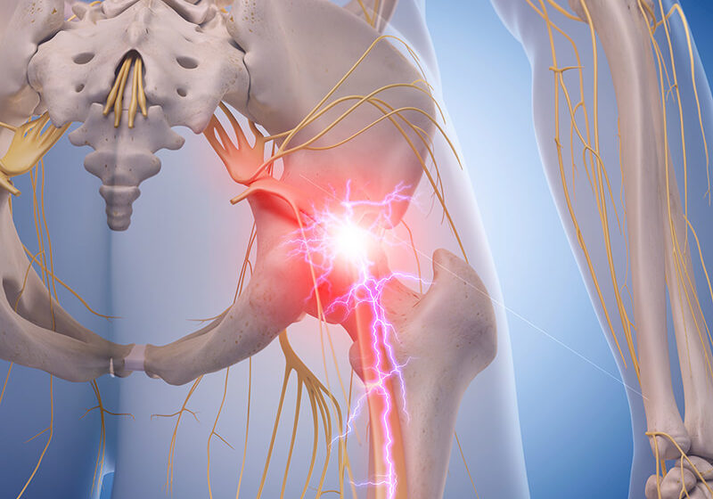 Sciatic Nerve Pain in Annapolis, MD